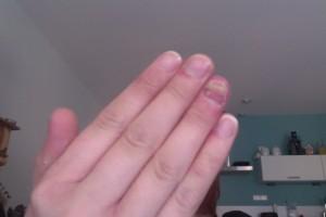 Pijnlijke vingers